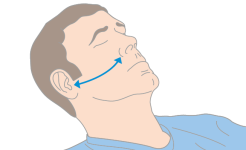 The length of the nasal airway can be estimated by the distance from the patient's nostril to the earlobe, or the angle of the jaw.