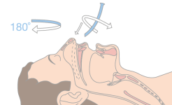 Insert with the curve facing the opposing direction and follow the nasal passage whilst turning the nasopharyngeal airway through 180o